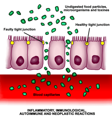 graphic showing faulty junctions in gut and healthy tight junction sin gut.